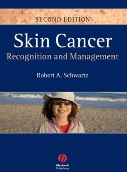 Skin Cancer Recognition and Management 2nd Edition