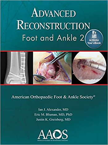 Advanced Reconstruction Foot and Ankle 2 Second Edition PDF