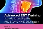 Advanced ENT Training A guide to passing the FRCS (ORL-HNS) Examination PDF