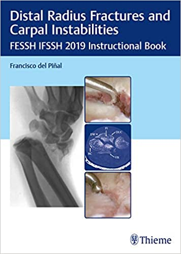 Distal Radius Fractures and Carpal Instabilities FESSH IFSSH 2019 Instructional Book PDF
