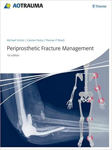 Periprosthetic Fracture Management 1st Edition PDF