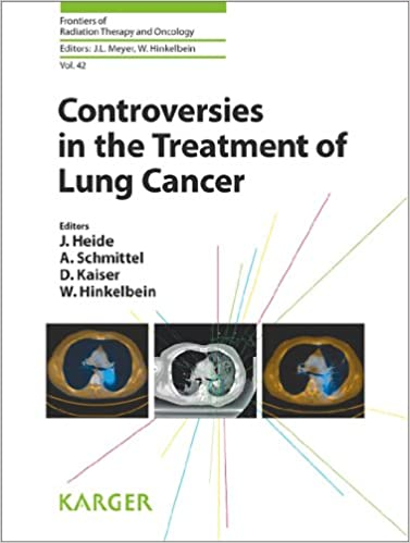 Controversies in the Treatment of Lung Cancer PDF