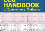 ECG Handbook of Contemporary Challenges PDF