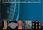 Imaging Anatomy of the Human Spine: A Comprehensive Atlas Including Adjacent Structures PDF