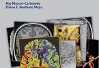 Radcases Neuro Imaging 1st Edition PDF