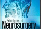 Principles of Neurosurgery 2nd Edition PDF