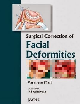 Surgical Correction of Facial Deformities 1st Edition PDF