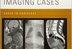 Pediatric Imaging Cases (Cases in Radiology) Illustrated Edition PDF
