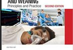 Non-Invasive Ventilation and Weaning: Principles and Practice 2nd Edition PDF