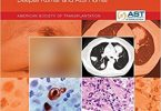 The AST Handbook of Transplant Infections 1st Edition PDF