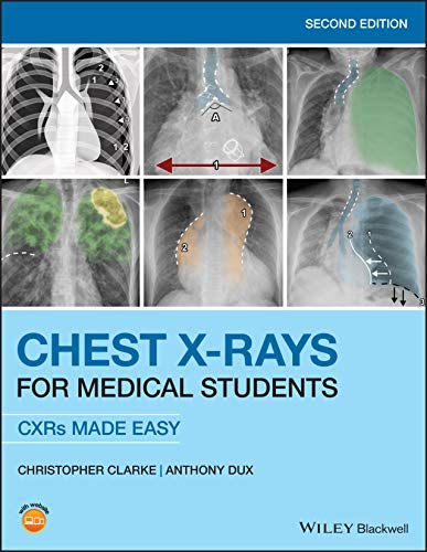 Chest X-Rays for Medical Students: CXRs Made Easy 2nd Edition PDF