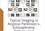 Typical Imaging in Atypical Parkinson's, Schizophrenia, Epilepsy and Asymptomatic Alzheimer's Disease PDF