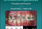 Preadjusted Edgewise Fixed Orthodontic Appliances: Principles and Practice PDF