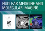 Nuclear Medicine and Molecular Imaging: Case Review Series 3rd Edition PDF