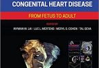 Echocardiography in Pediatric and Congenital Heart Disease: From Fetus to Adult 3rd Edition PDF